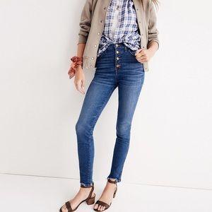 Madewell frayed hem skinny jeans